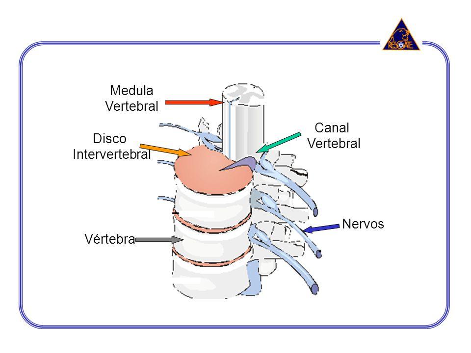 Medula Vertebral Canal Vertebral Disco Intervertebral Nervos Vértebra