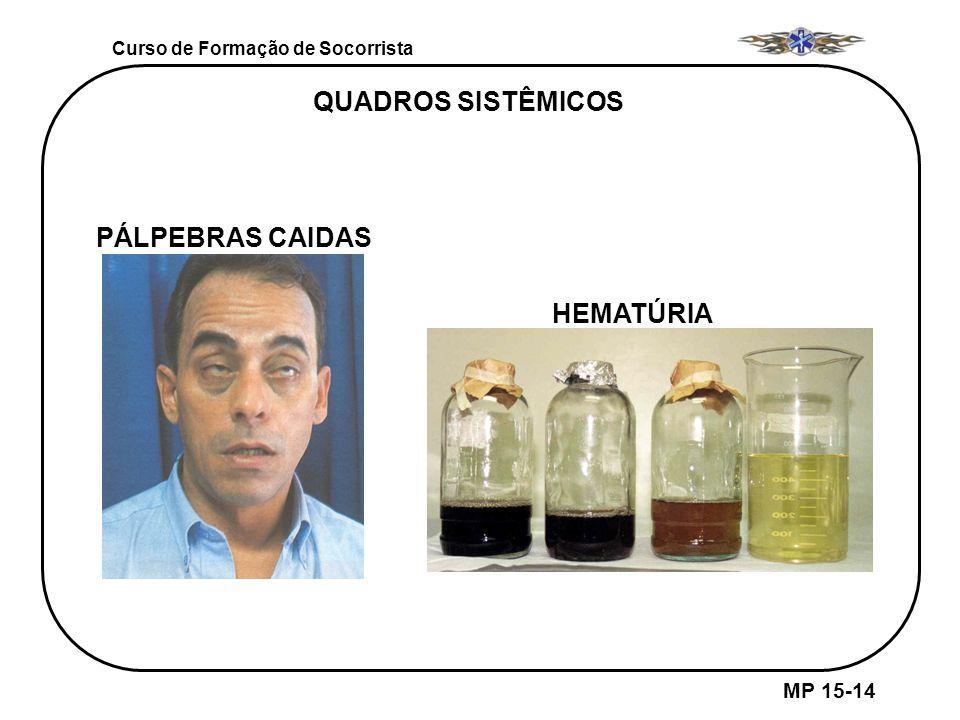 QUADROS SISTÊMICOS PÁLPEBRAS CAIDAS HEMATÚRIA MP 15-14