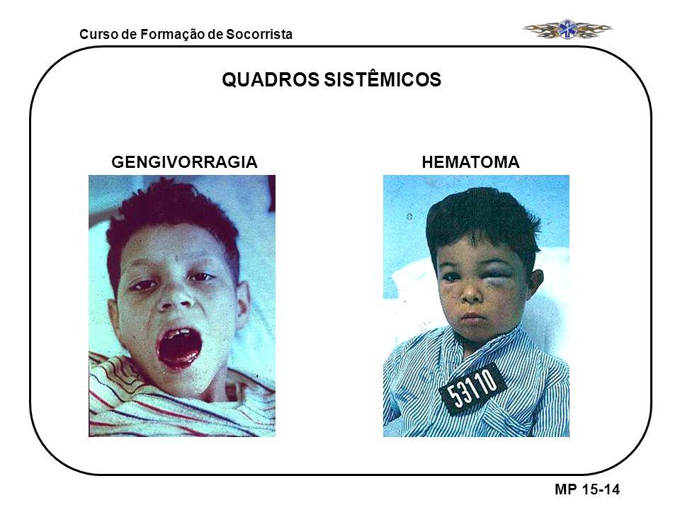 QUADROS SISTÊMICOS GENGIVORRAGIA HEMATOMA MP 15-14