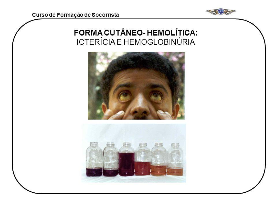 FORMA CUTÂNEO- HEMOLÍTICA: