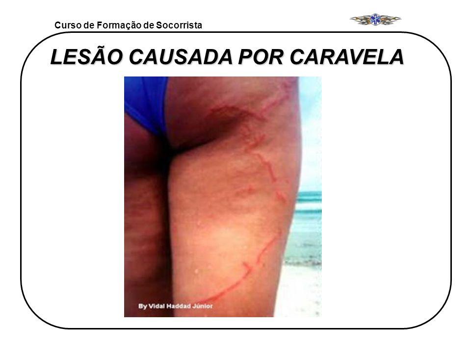 LESÃO CAUSADA POR CARAVELA