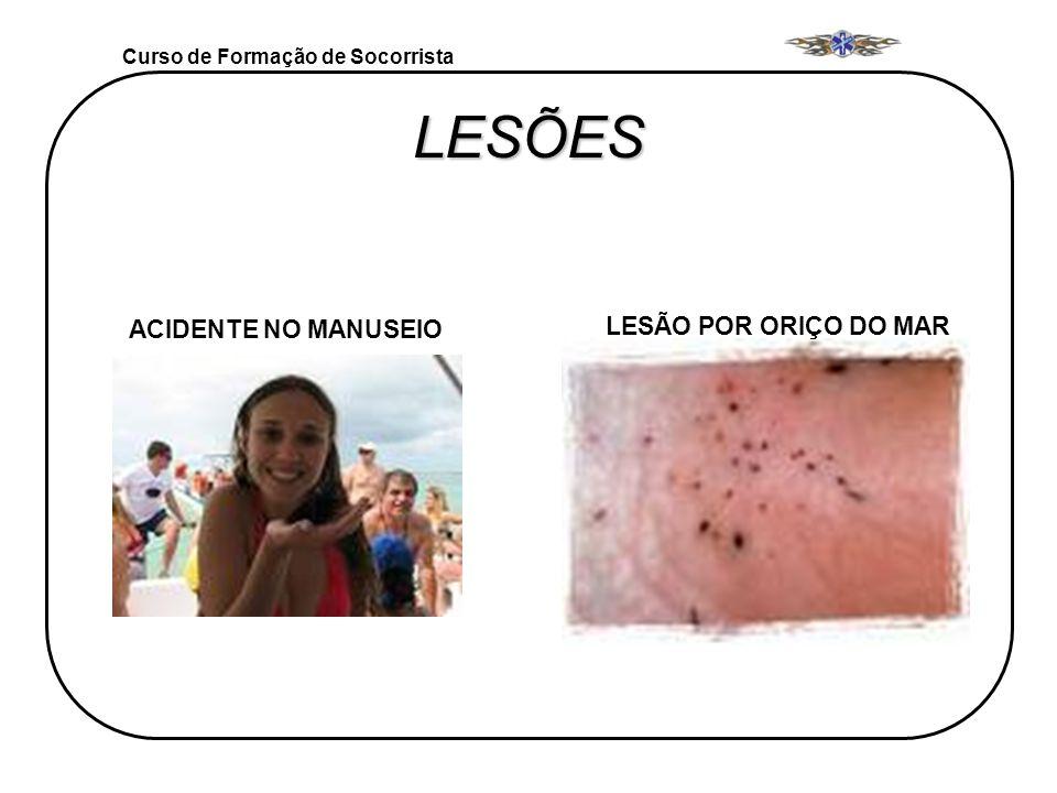LESÕES LESÃO POR ORIÇO DO MAR ACIDENTE NO MANUSEIO