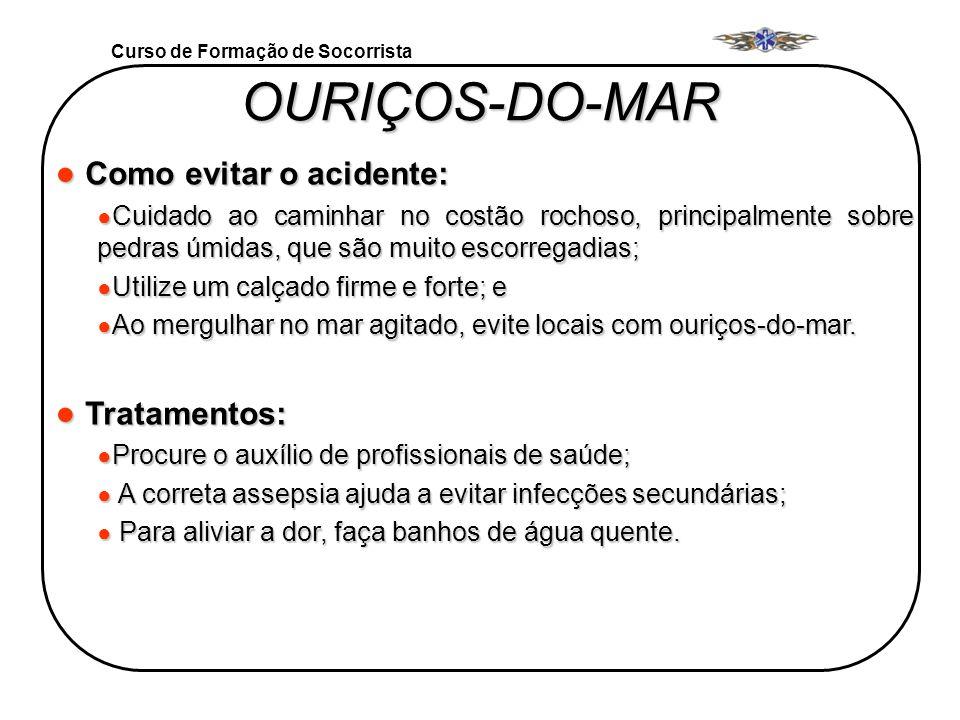 OURIÇOS-DO-MAR Como evitar o acidente: Tratamentos: