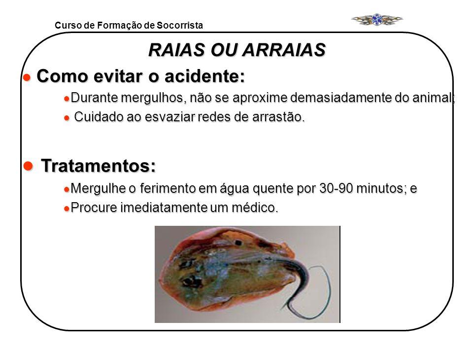Tratamentos: RAIAS OU ARRAIAS Como evitar o acidente: