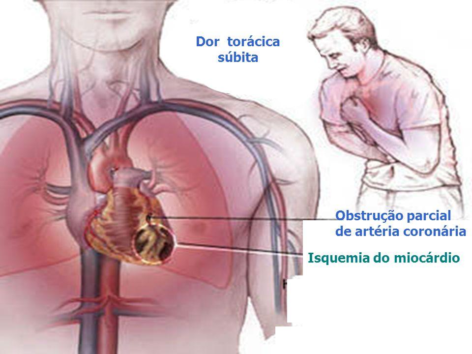 Dor torácica súbita Obstrução parcial de artéria coronária Isquemia do miocárdio