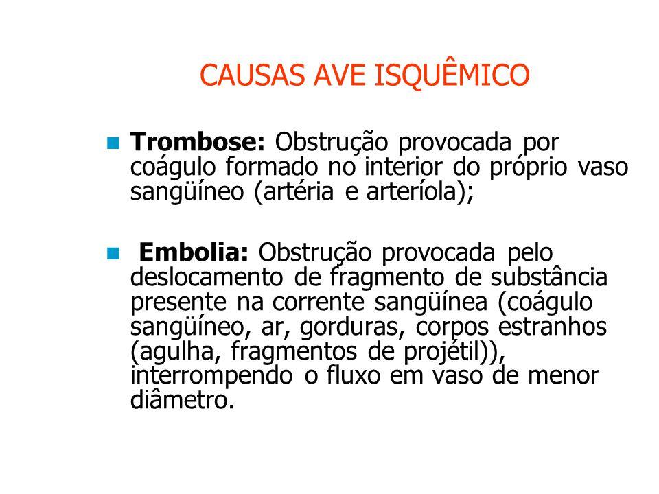 CAUSAS AVE ISQUÊMICO Trombose: Obstrução provocada por coágulo formado no interior do próprio vaso sangüíneo (artéria e arteríola);