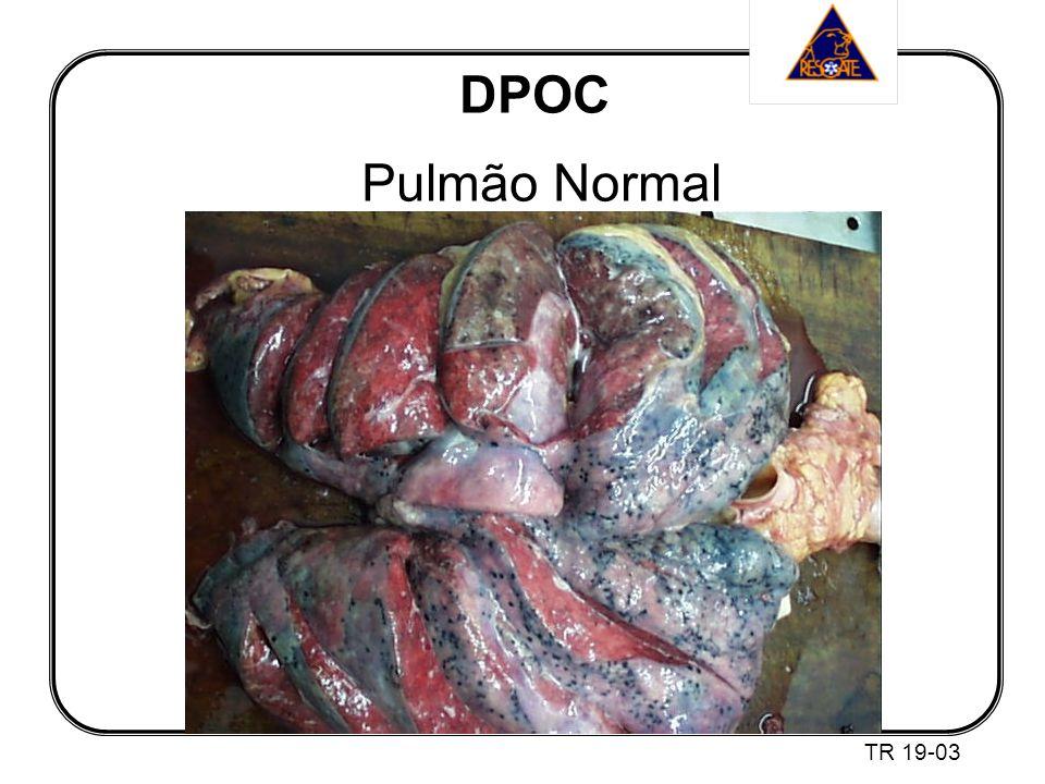DPOC Pulmão Normal TR 19-03