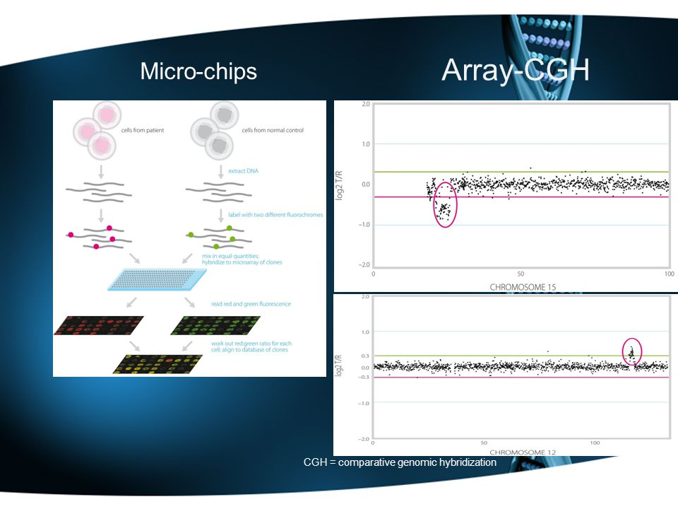 Array-CGH Micro-chips CGH = comparative genomic hybridization