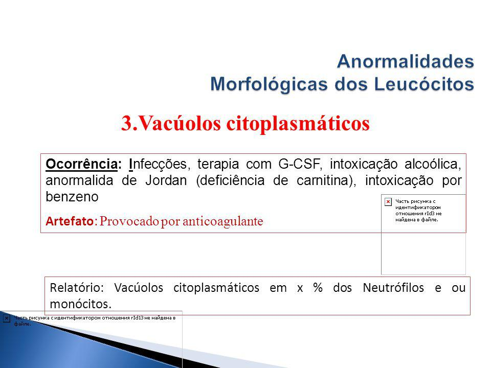 Anormalidades Morfológicas dos Leucócitos