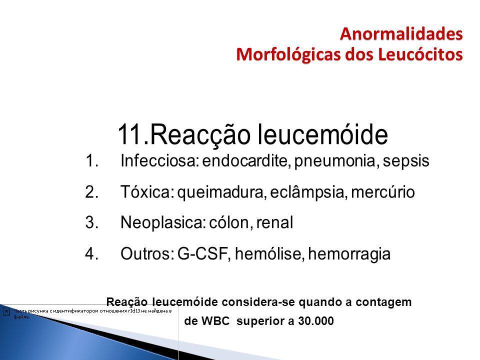 Morfológicas dos Leucócitos