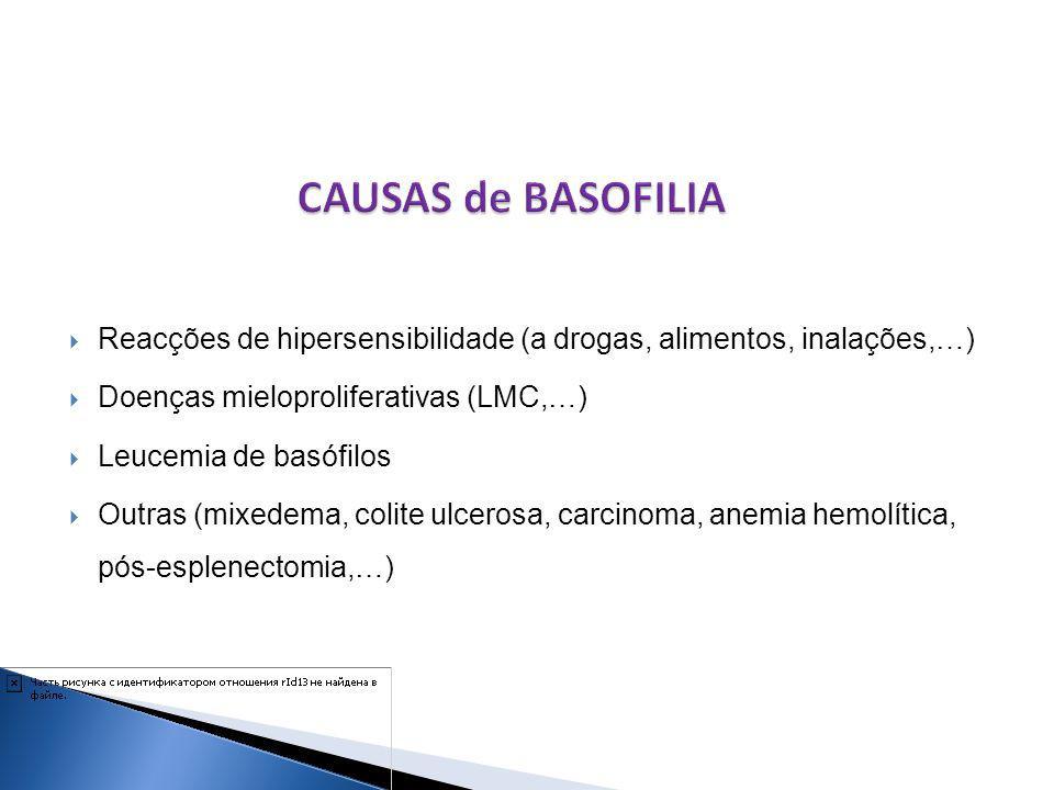 CAUSAS de BASOFILIA Reacções de hipersensibilidade (a drogas, alimentos, inalações,…) Doenças mieloproliferativas (LMC,…)