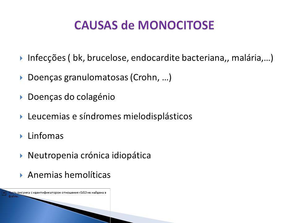 CAUSAS de MONOCITOSE Infecções ( bk, brucelose, endocardite bacteriana,, malária,…) Doenças granulomatosas (Crohn, …)