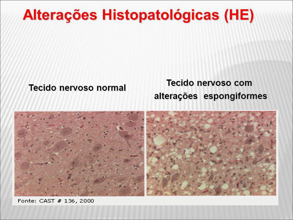 Alterações Histopatológicas (HE) alterações espongiformes