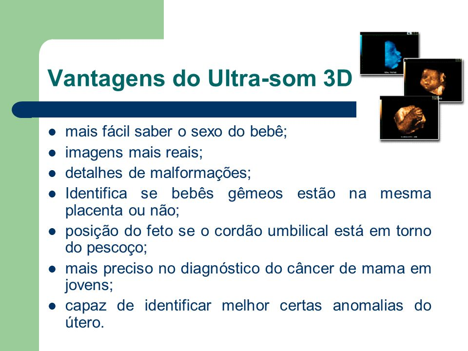 Vantagens do Ultra-som 3D