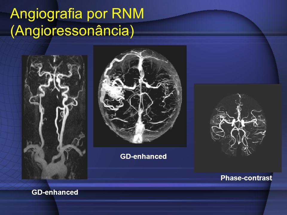 Angiografia por RNM (Angioressonância)
