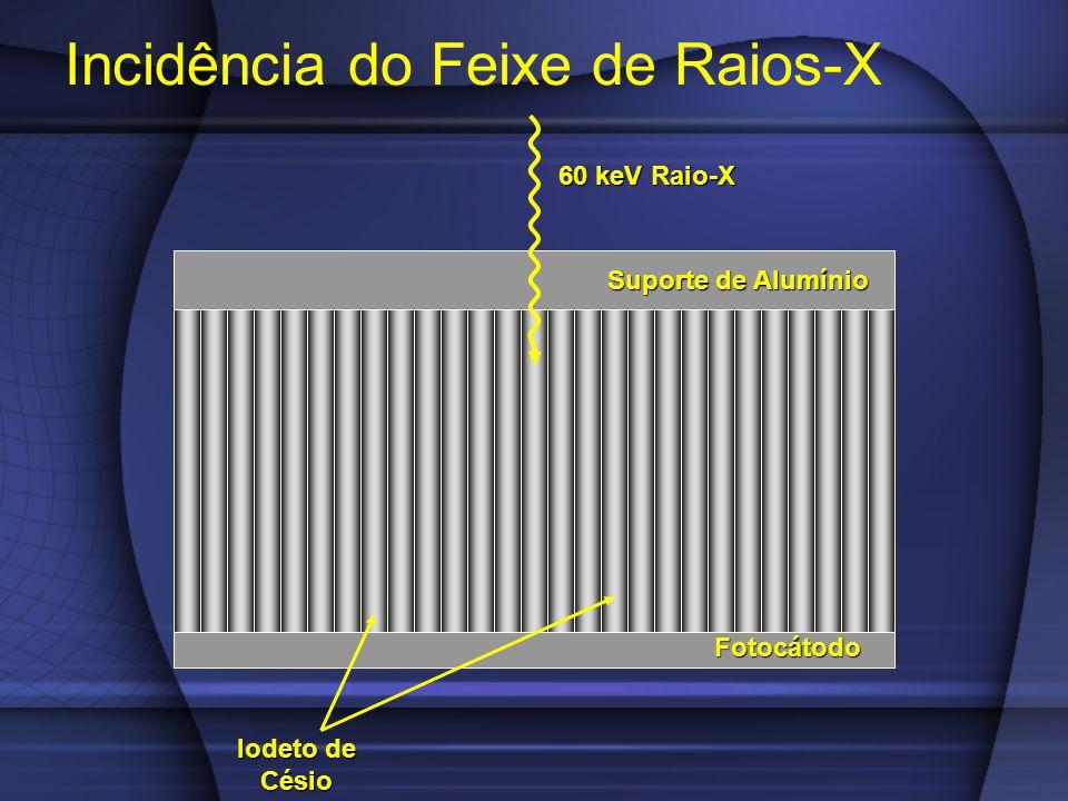 Incidência do Feixe de Raios-X