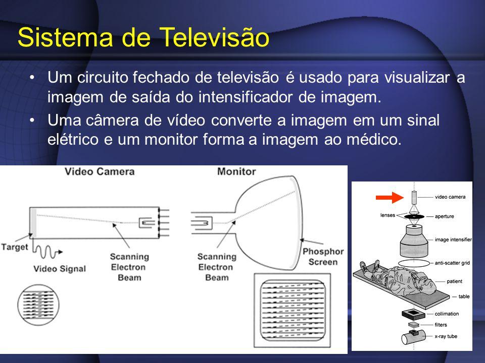 Sistema de Televisão Um circuito fechado de televisão é usado para visualizar a imagem de saída do intensificador de imagem.