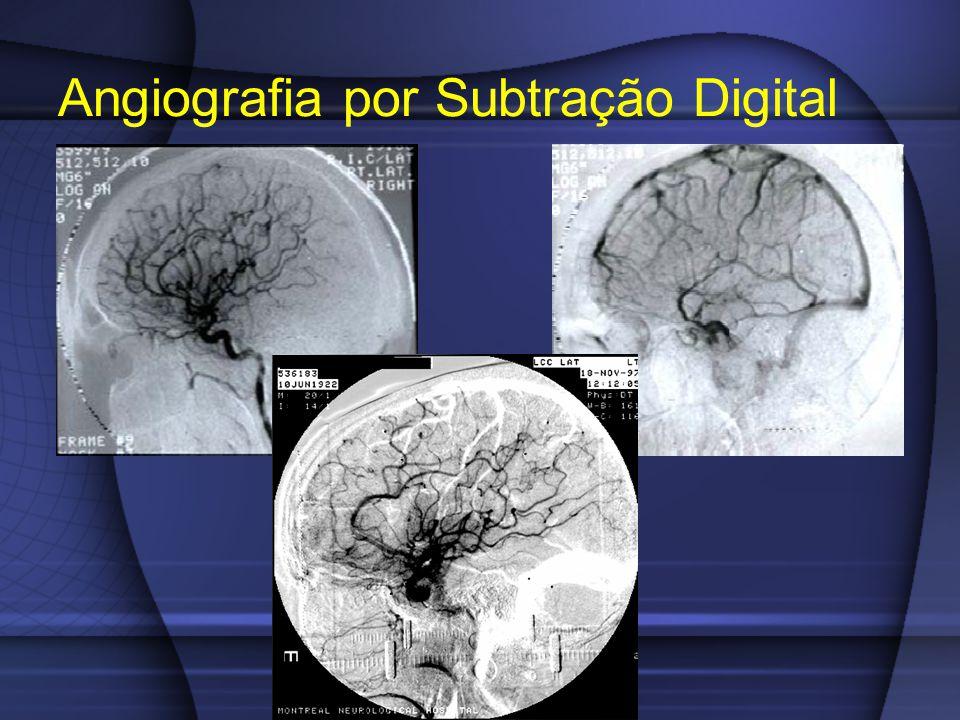 Angiografia por Subtração Digital