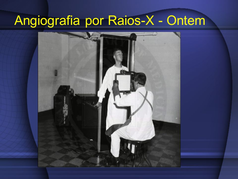 Angiografia por Raios-X - Ontem