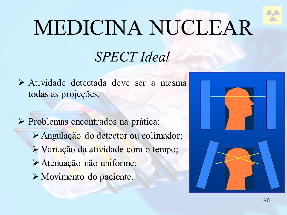 MEDICINA NUCLEAR SPECT Ideal