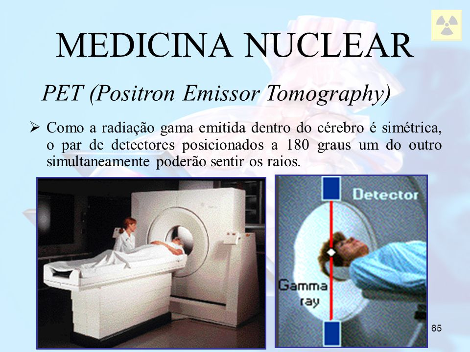 PET (Positron Emissor Tomography)