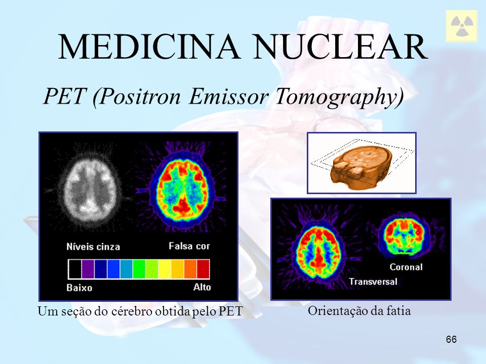 MEDICINA NUCLEAR PET (Positron Emissor Tomography)