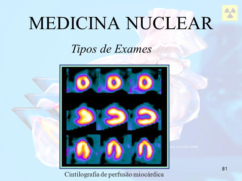 Cintilografia de perfusão miocárdica