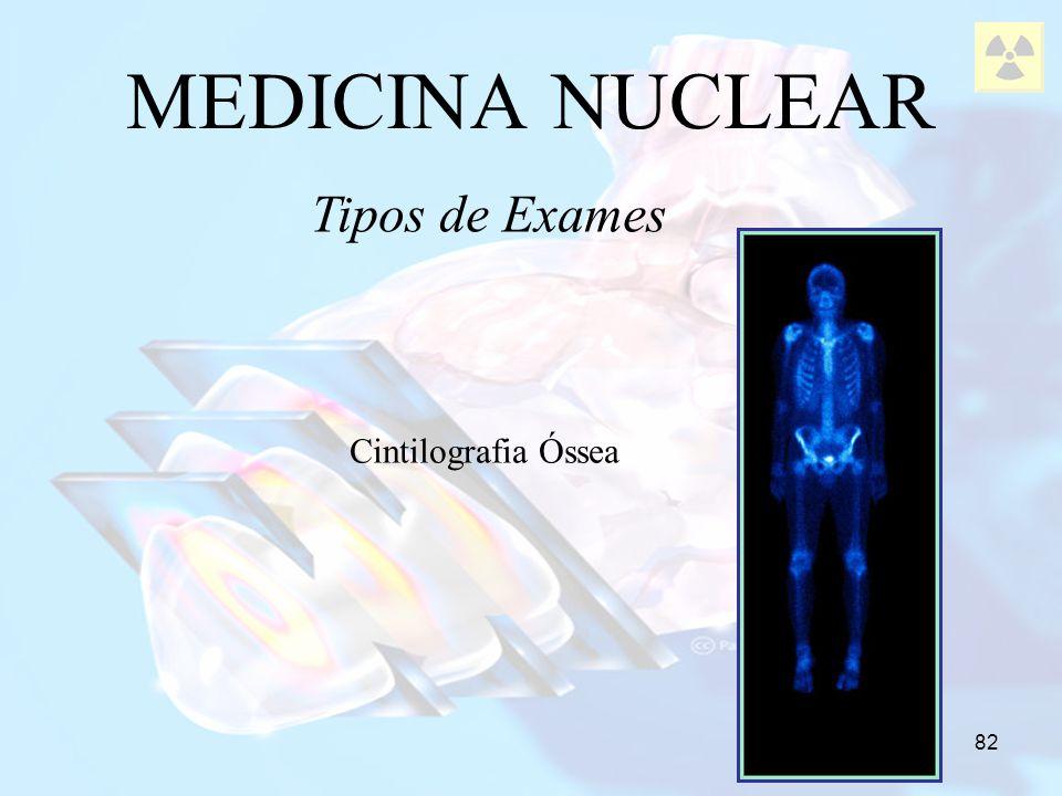 MEDICINA NUCLEAR Tipos de Exames Cintilografia Óssea