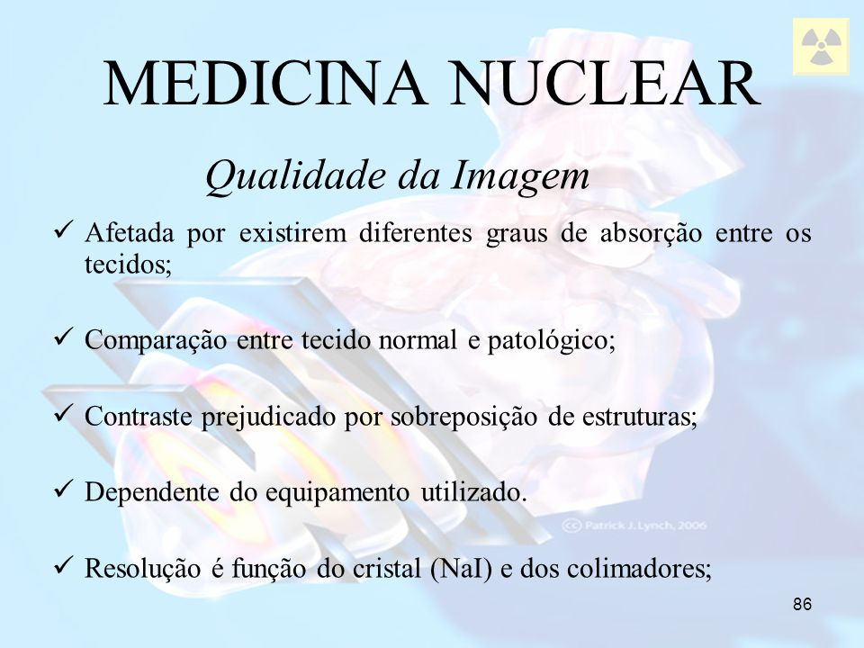 MEDICINA NUCLEAR Qualidade da Imagem