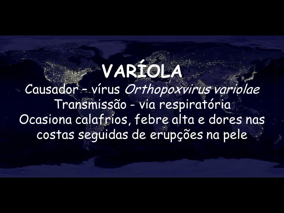 VARÍOLA Causador – vírus Orthopoxvirus variolae