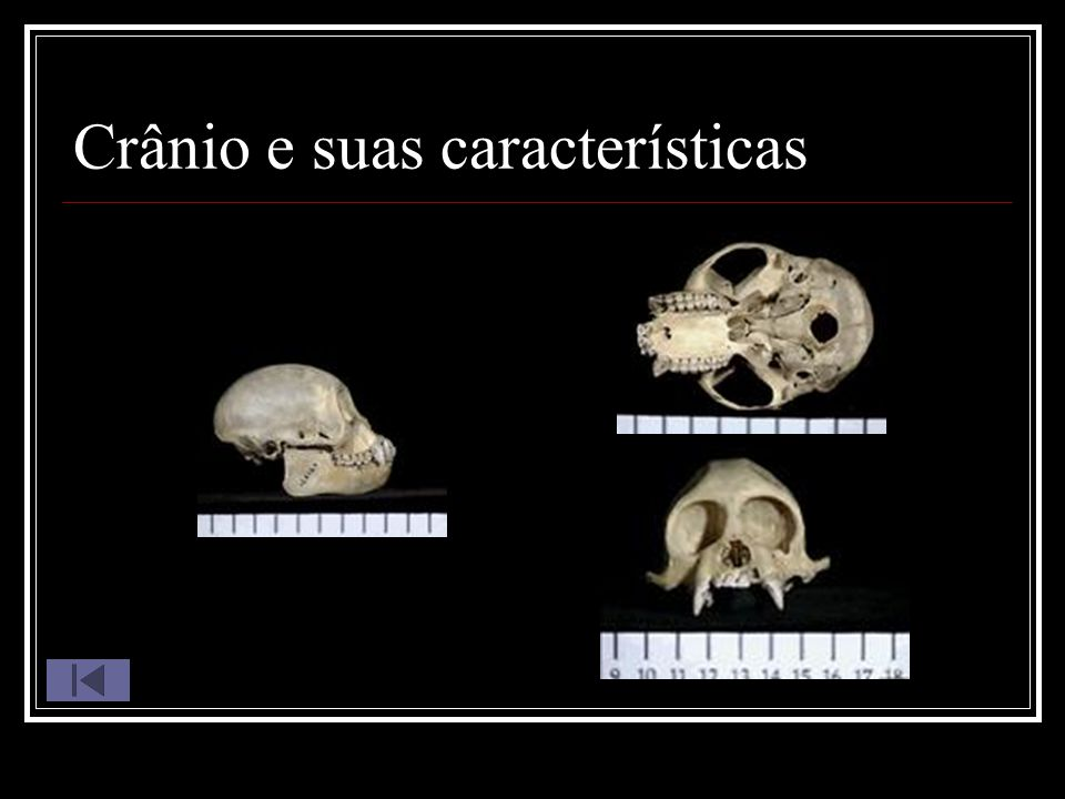 Crânio e suas características