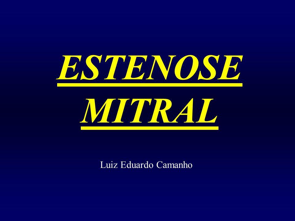 ESTENOSE MITRAL Luiz Eduardo Camanho