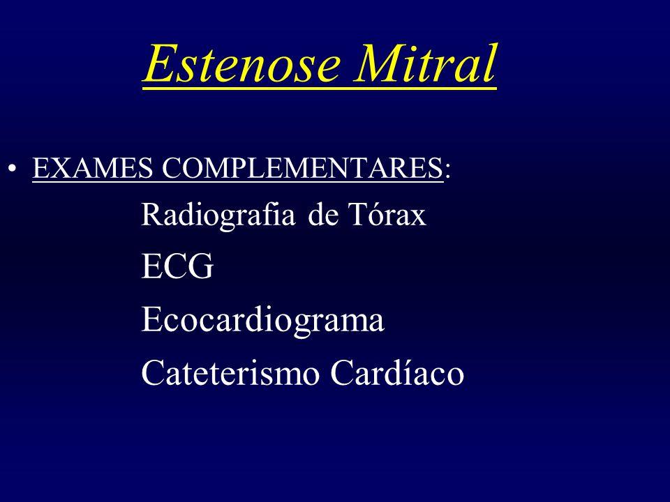 Estenose Mitral ECG Ecocardiograma Cateterismo Cardíaco