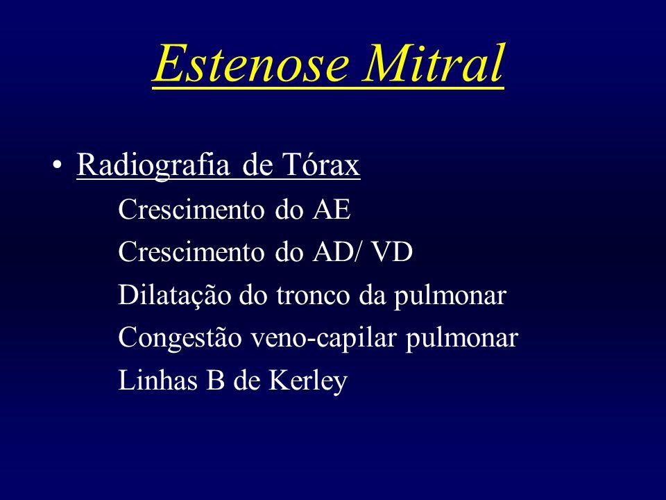 Estenose Mitral Radiografia de Tórax Crescimento do AE