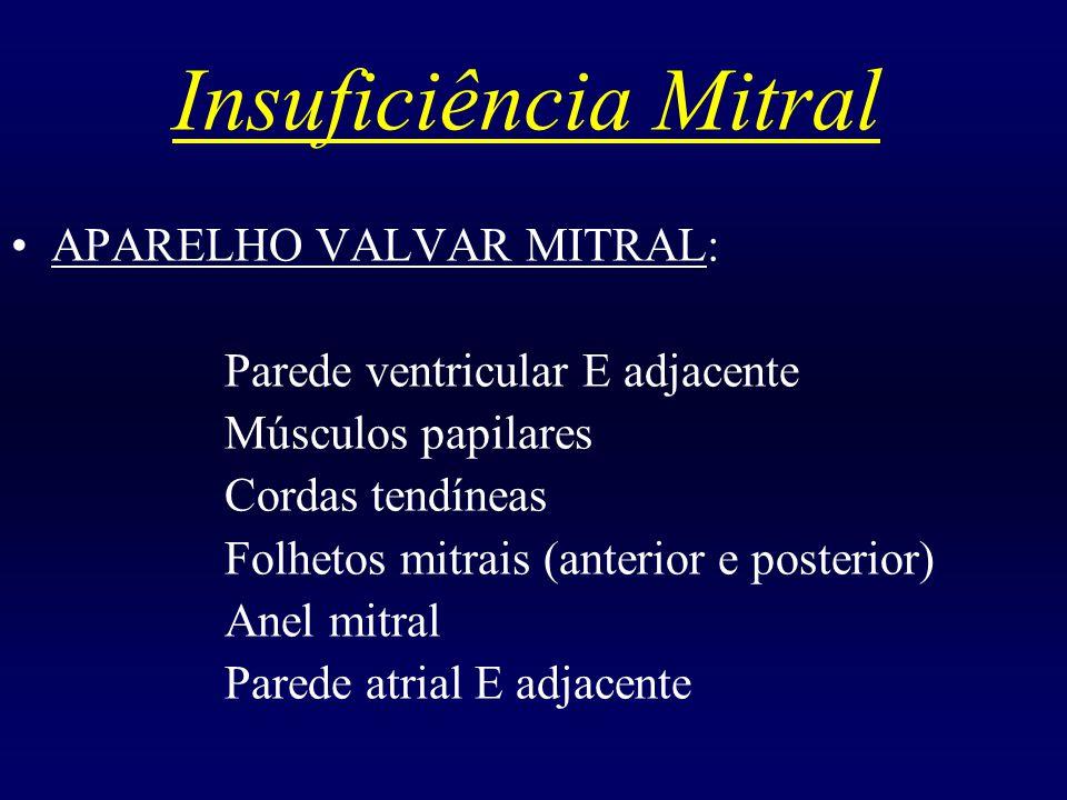Insuficiência Mitral APARELHO VALVAR MITRAL: