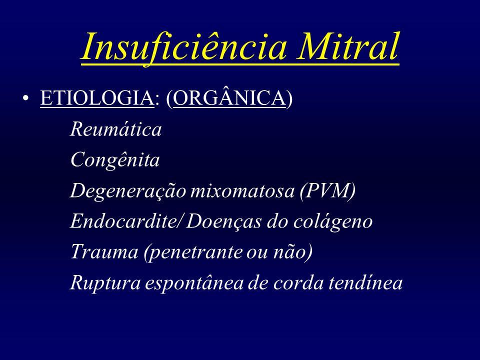 Insuficiência Mitral ETIOLOGIA: (ORGÂNICA) Reumática Congênita