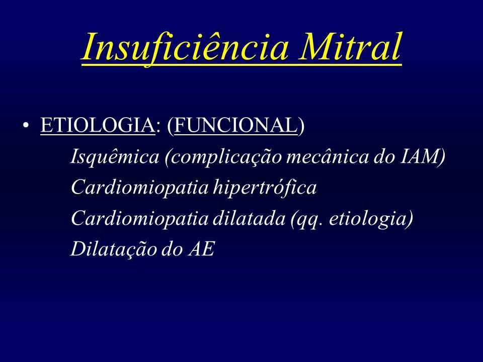 Insuficiência Mitral ETIOLOGIA: (FUNCIONAL)