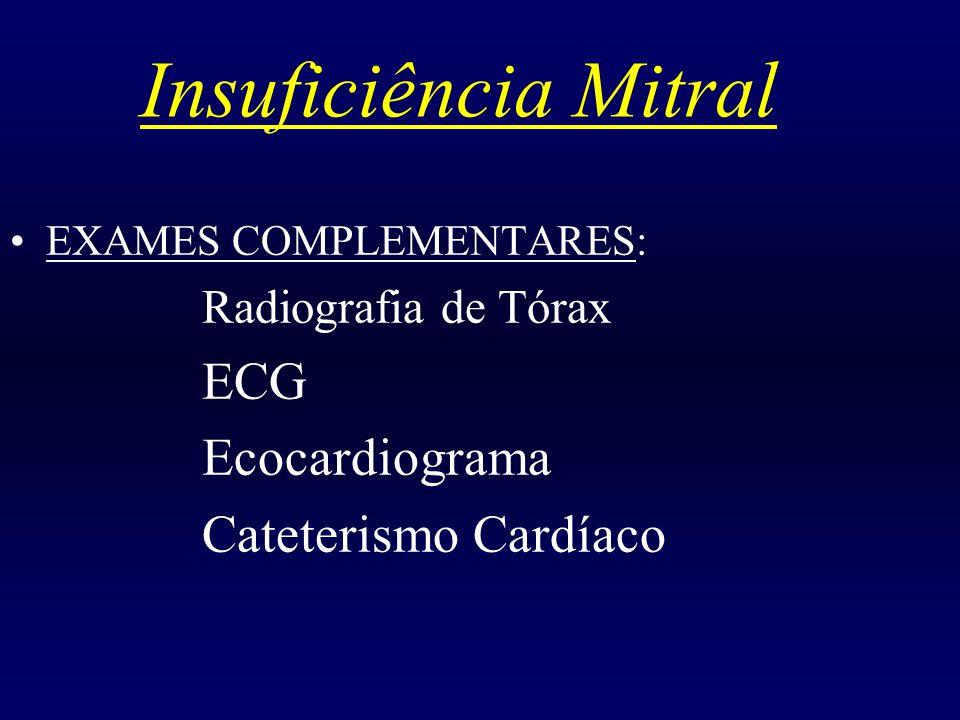 Insuficiência Mitral ECG Ecocardiograma Cateterismo Cardíaco