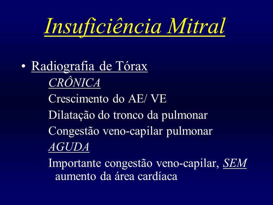 Insuficiência Mitral Radiografia de Tórax CRÔNICA