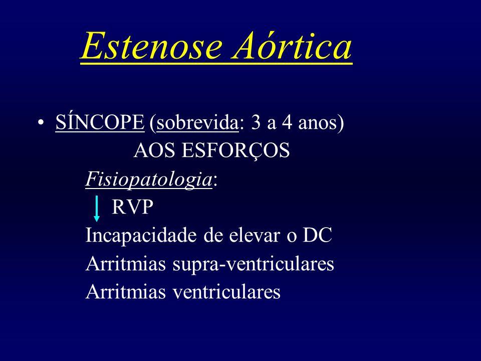 Estenose Aórtica SÍNCOPE (sobrevida: 3 a 4 anos) AOS ESFORÇOS