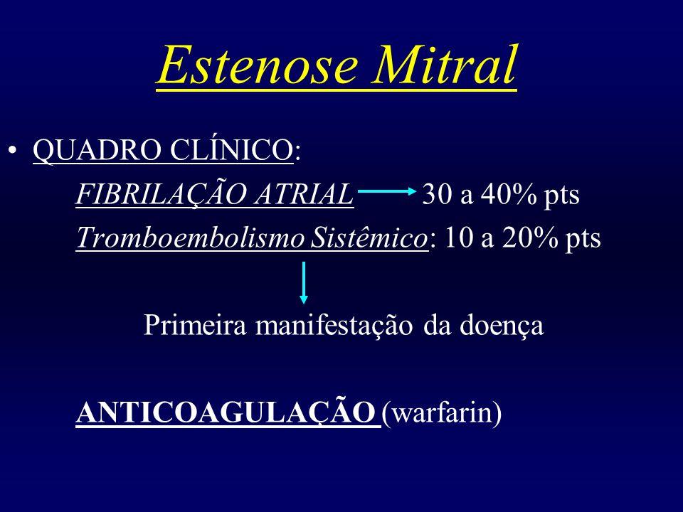 Estenose Mitral QUADRO CLÍNICO: FIBRILAÇÃO ATRIAL 30 a 40% pts