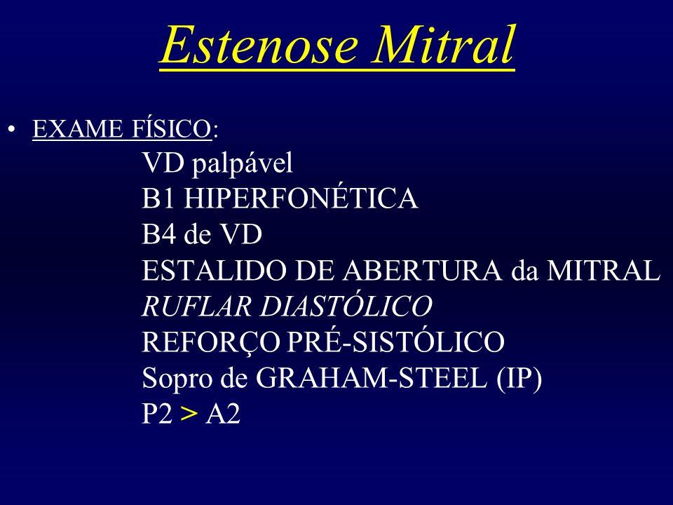 Estenose Mitral B1 HIPERFONÉTICA B4 de VD