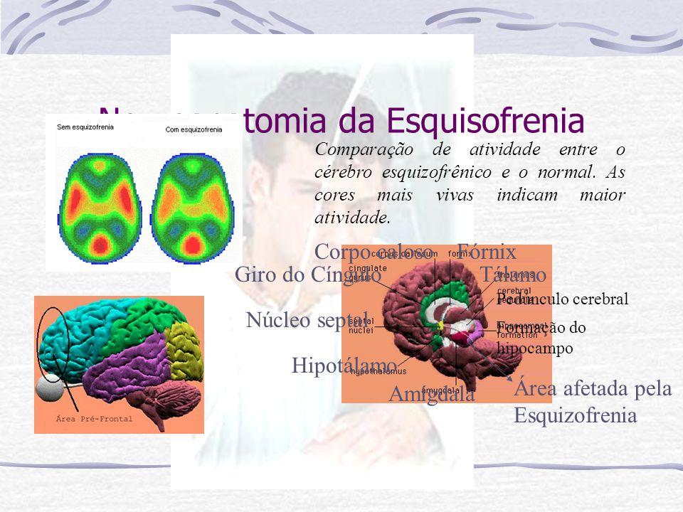 Neuroanatomia da Esquisofrenia