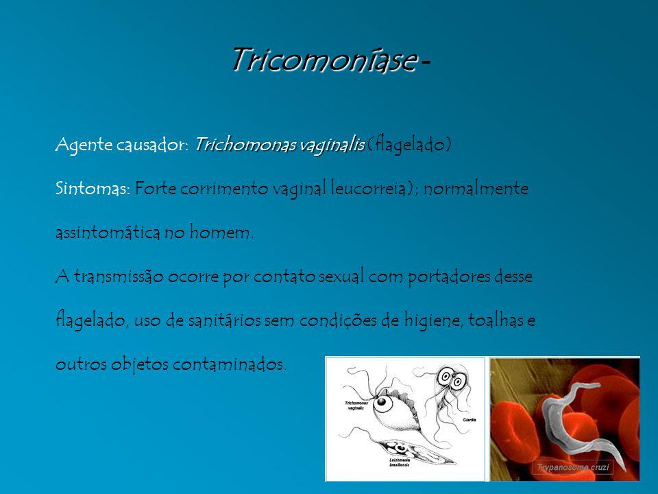 Tricomoníase - Agente causador: Trichomonas vaginalis (flagelado)