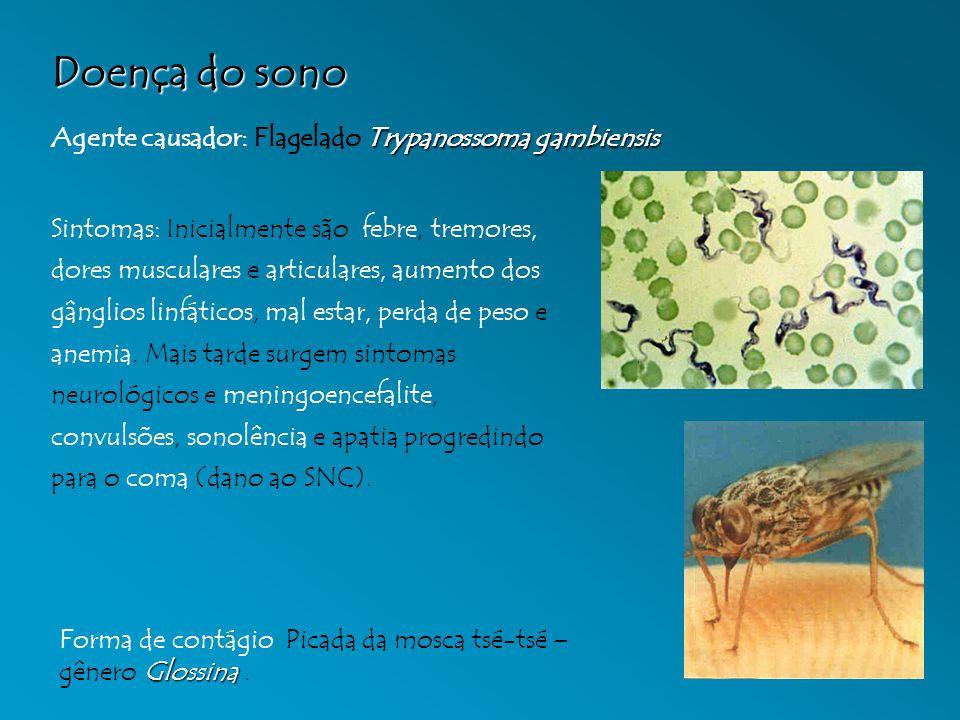 Doença do sono Agente causador: Flagelado Trypanossoma gambiensis