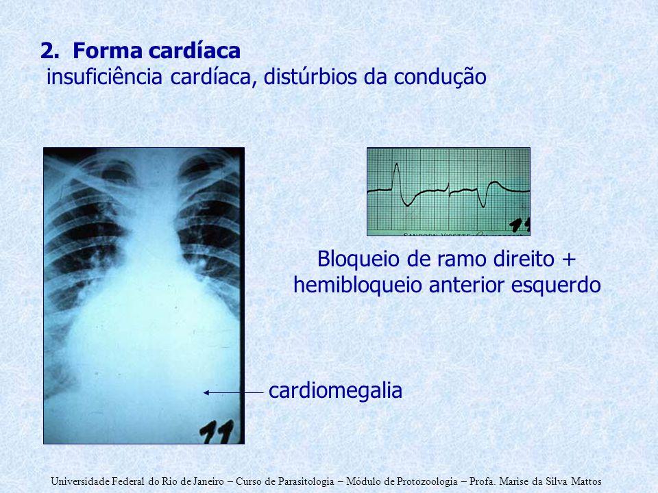 Bloqueio de ramo direito + hemibloqueio anterior esquerdo