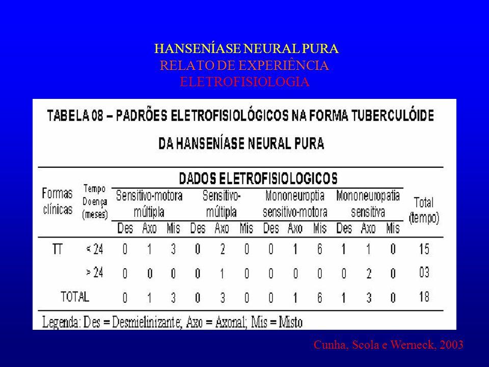 HANSENÍASE NEURAL PURA RELATO DE EXPERIÊNCIA ELETROFISIOLOGIA