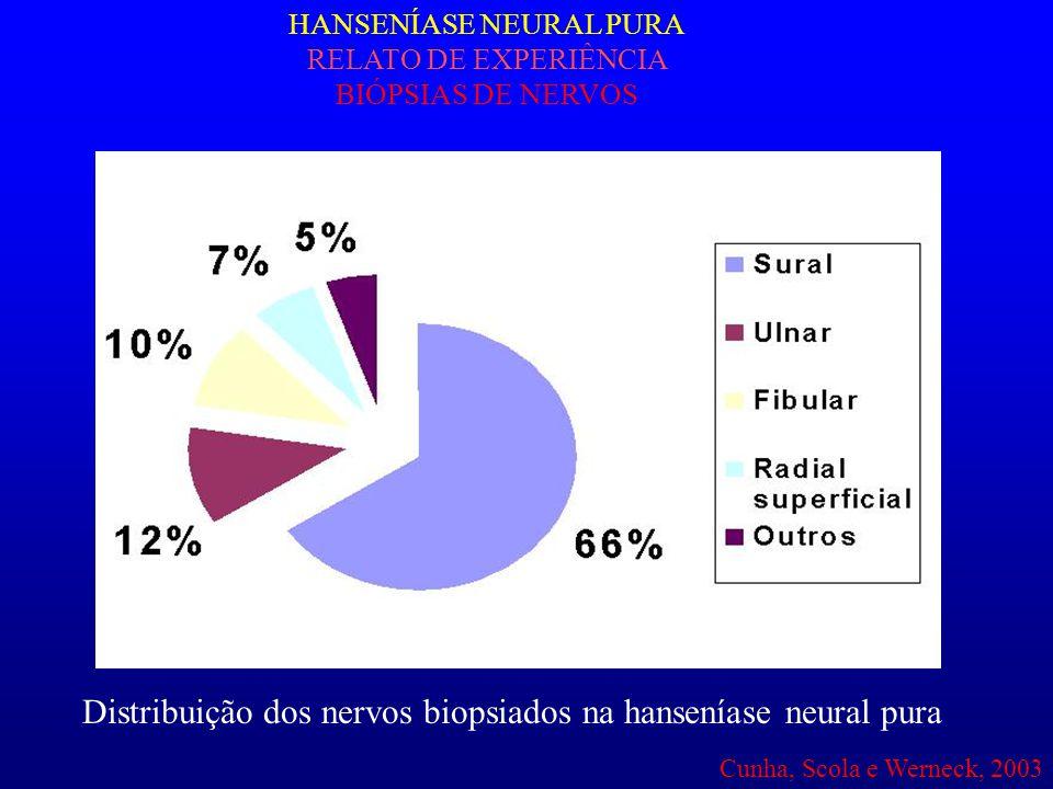 HANSENÍASE NEURAL PURA RELATO DE EXPERIÊNCIA BIÓPSIAS DE NERVOS