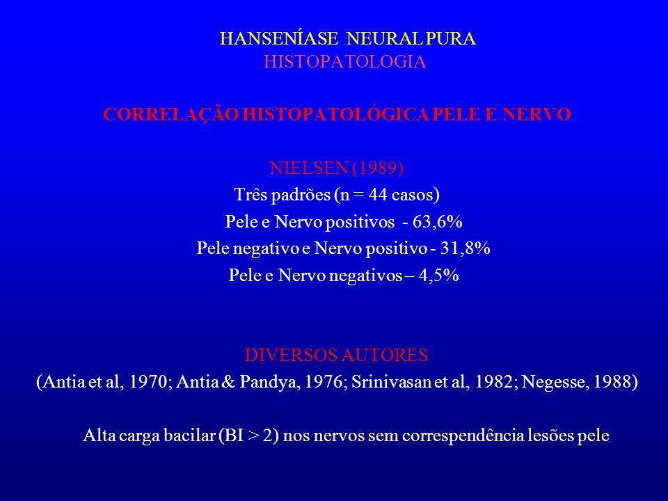 HANSENÍASE NEURAL PURA HISTOPATOLOGIA