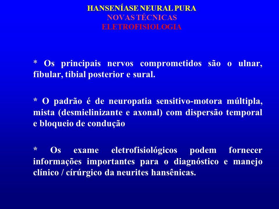 HANSENÍASE NEURAL PURA NOVAS TÉCNICAS ELETROFISIOLOGIA
